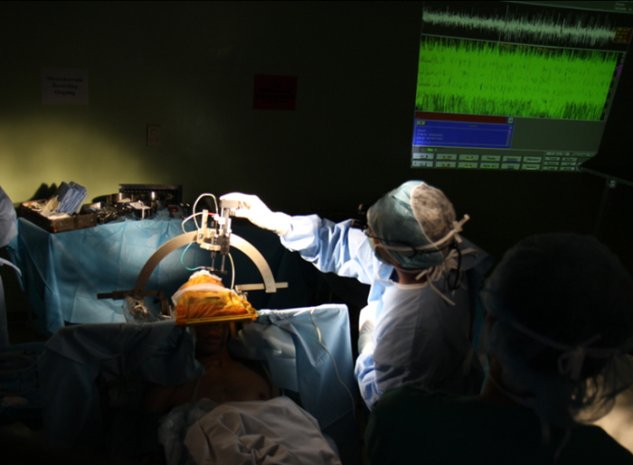 Non-invasive brain surgery guarantees accuracy and quick recovery
